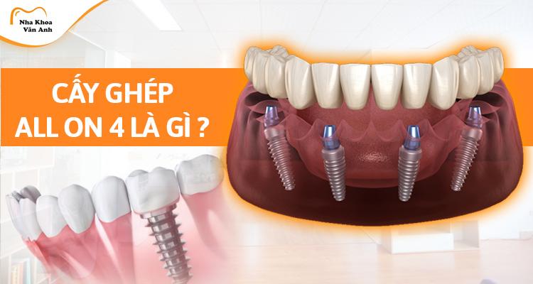 Cấy ghép Implant all on 4 là gì? Quy trình thực hiện như thế nào?