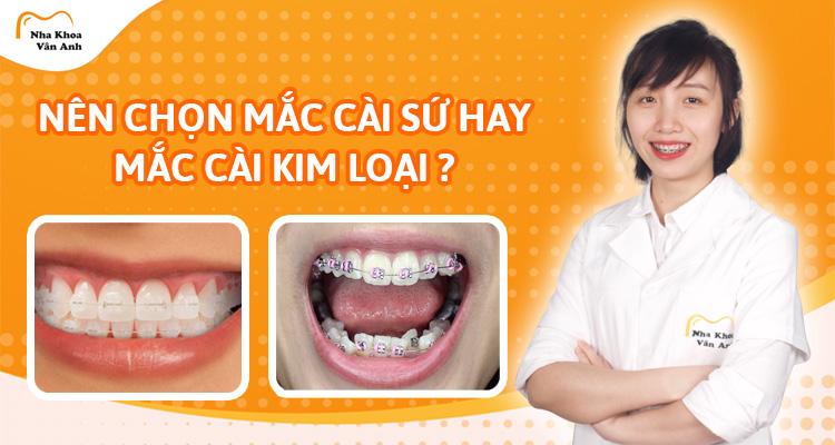 Nên chọn niềng răng mắc cài kim loại hay mắc cài sứ?