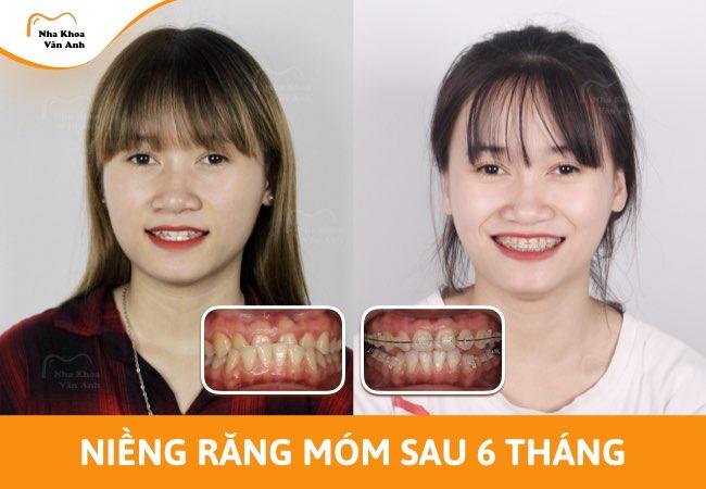 nên chọn niềng răng mắc cài kim loại hay mắc cài sứ