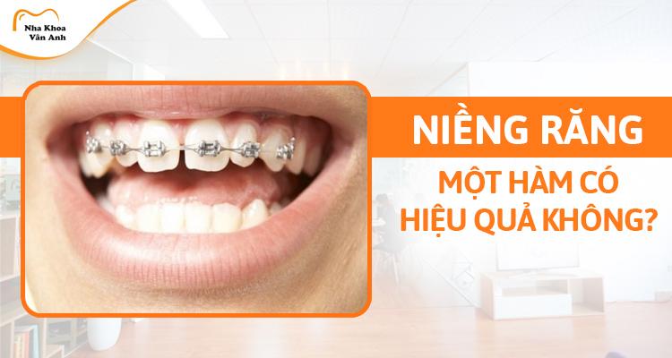 Niềng răng 1 hàm có hiệu quả không? Giá bao nhiêu tiền?