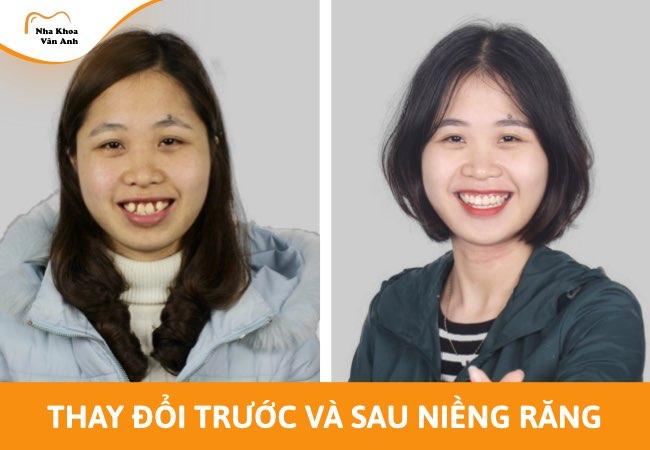 niềng răng có làm thay đổi khuôn mặt không