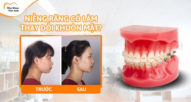 Niềng răng có làm thay đổi khuôn mặt không ?