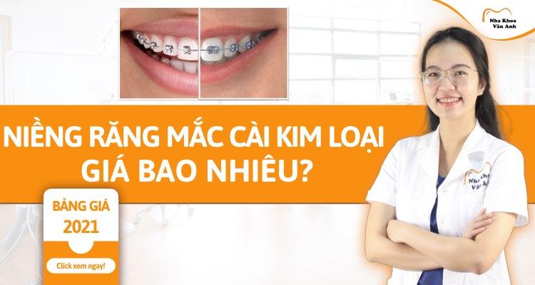 Niềng răng mắc cài kim loại giá bao nhiêu tiền 2021? Ưu – nhược điểm của mắc cài kim loại