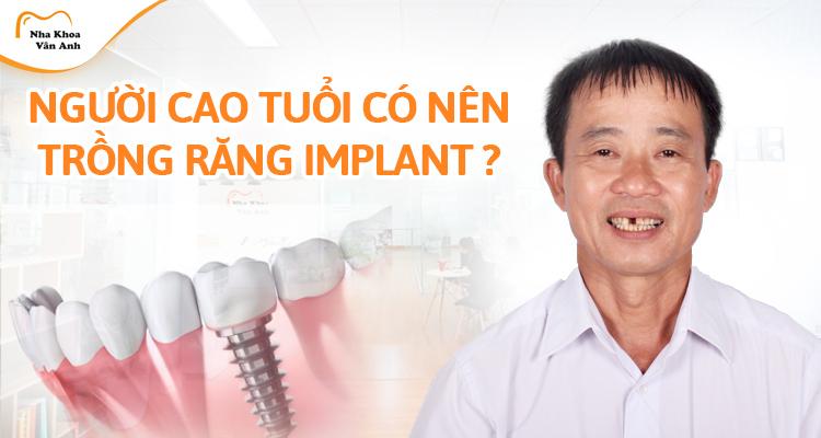Trồng răng Implant cho người già có tốt không? Cần điều kiện gì? Chi phí có đắt không?