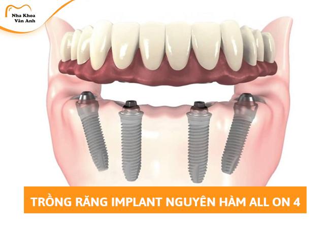 Trồng răng toàn hàm Implant