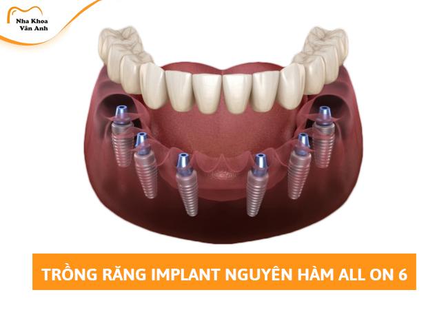 Cấy răng Implant All on 6 toàn hàm