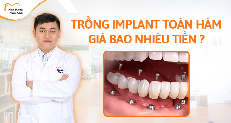 Trồng răng Implant nguyên hàm giá bao nhiêu tiền? Có nguy hiểm không?