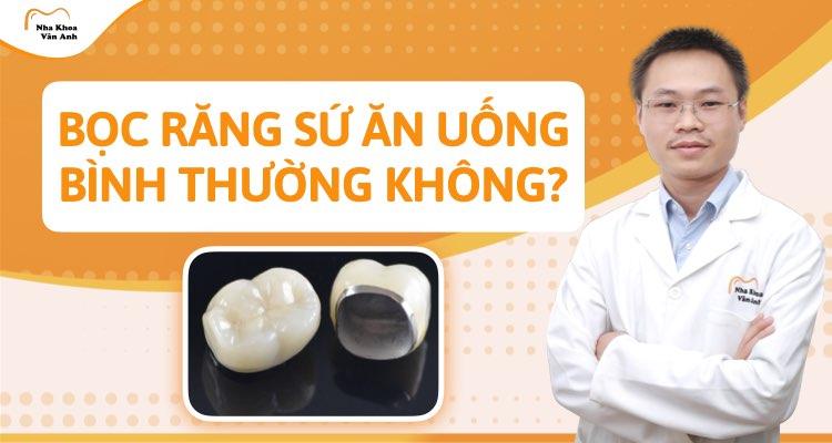 Bọc răng sứ có ăn uống bình thường được không?