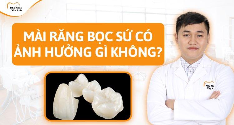 Mài răng bọc sứ có ảnh hưởng gì không?