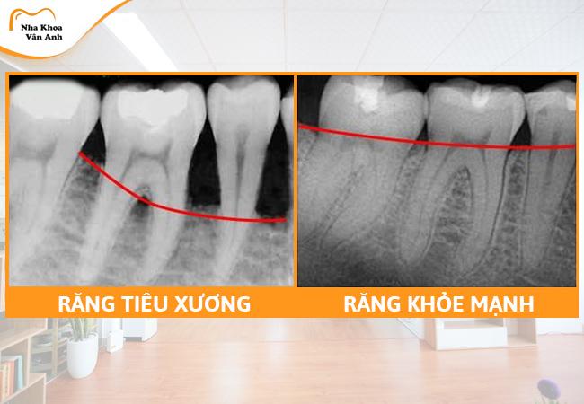 Răng tiêu xương