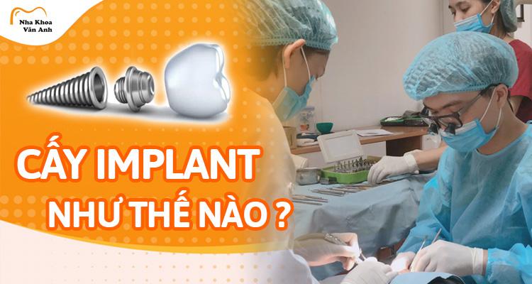 Quá trình cấy ghép Implant diễn ra như thế nào?