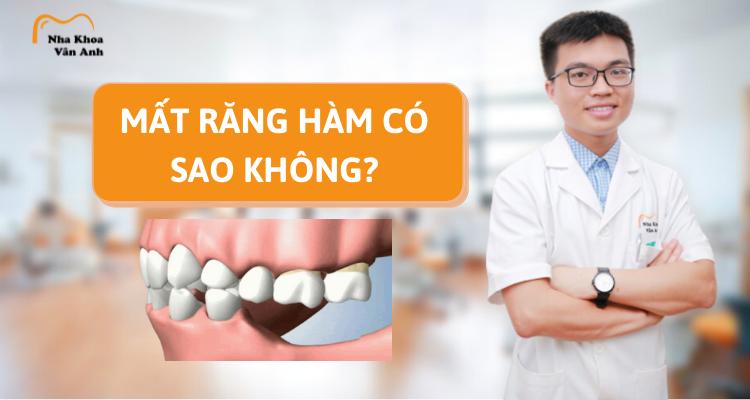 Mất răng hàm có sao không? Cách khắc phục là gì?