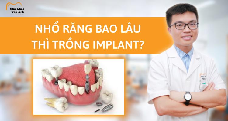 Nhổ răng bao lâu thì trồng implant?