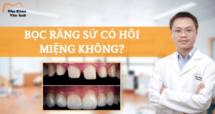 Bọc răng sứ có bị hôi miệng không?