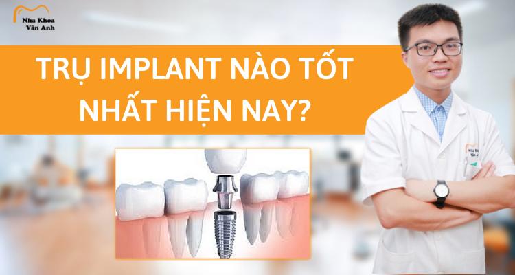 Trụ Implant nào tốt nhất hiện nay?