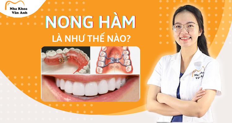 nong-ham-la-nhu-the-nao