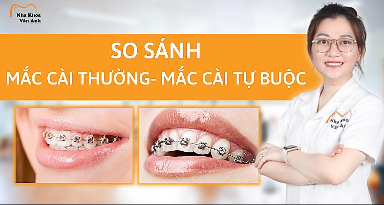 so-sanh-mac-cai-thuong-va-mac-cai-tu-buoc