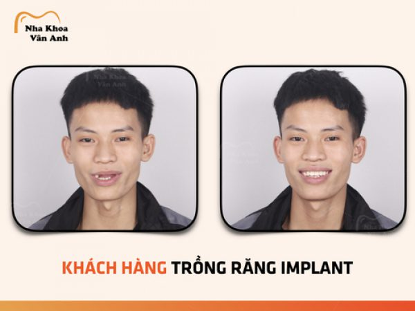 Khách hàng trồng răng implant tại nha khoa Vân Anh