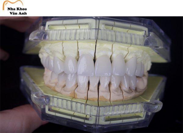 Răng sứ Venus chính hãng tại nha khoa Vân Anh