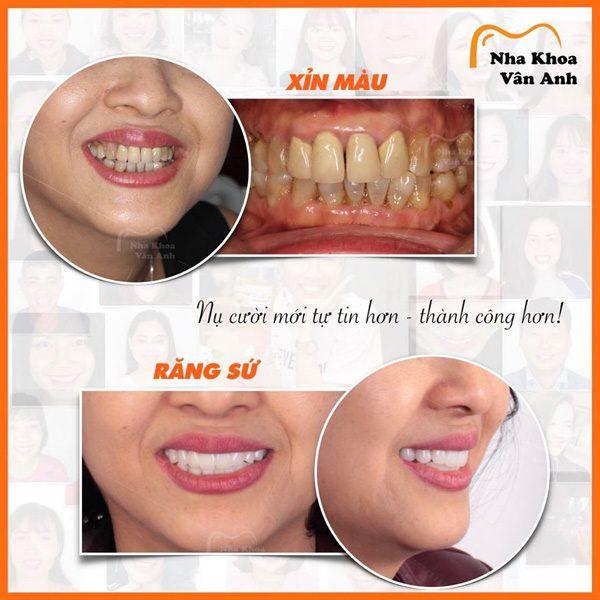 Hình ảnh khách hàng là răng sứ thẩm mỹ