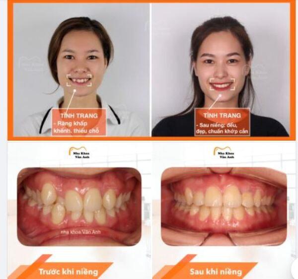 Hình ảnh so sánh tình trạng răng của khách hàng trước và sau khi niềng tại Nha khoa Vân Anh