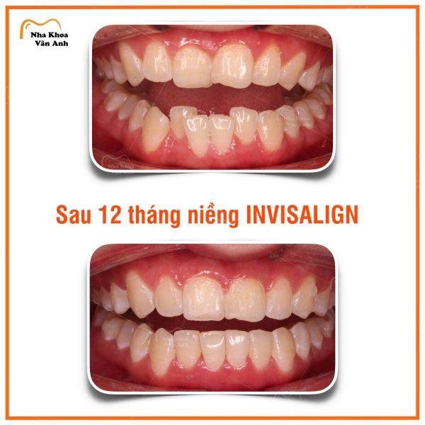 Một ca niềng răng bằng máng trong suốt Invisalign kết thúc thành công tại nha khoa Vân Anh chỉ sau 12 tháng