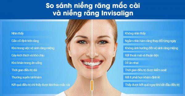 So sánh niềng răng trong suốt và niềng răng mắc cài