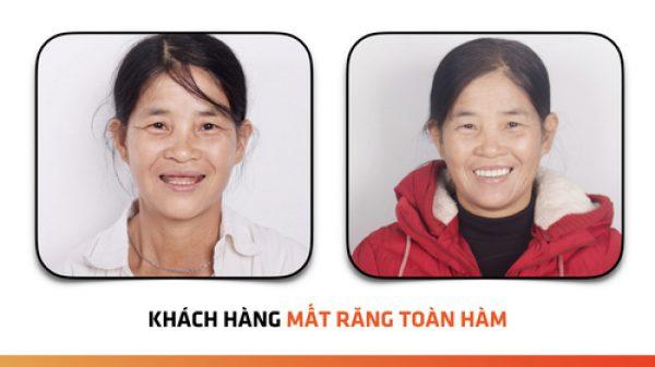 Nha khoa Vân Anh thực hiện thành công ca cấy ghép Implant cho khách hàng mất răng toàn hàm