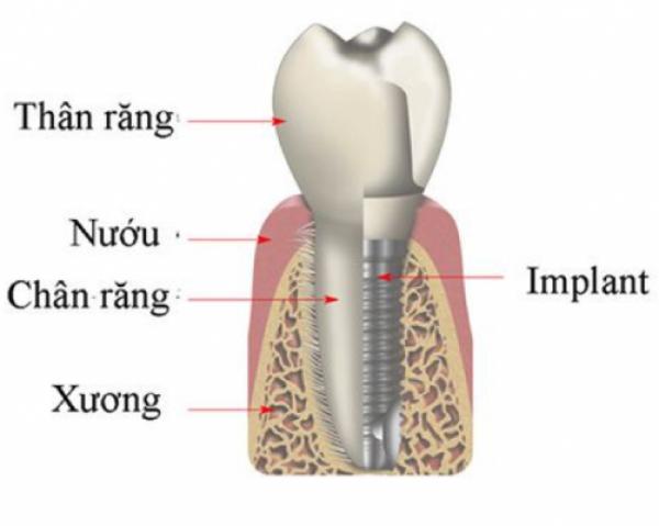 Mô hình răng Implant nhân tạo
