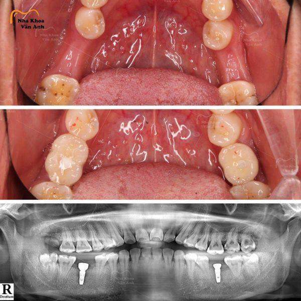Mô phỏng chân răng Implant được trồng đúng hướng
