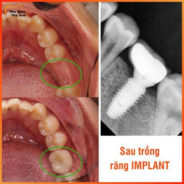 Hình chụp phim X-quang chân răng nhân tạo sau khi cấy ghép hoàn thiện cho thấy độ tương thích với xương hàm như răng thật
