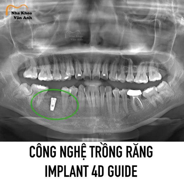 Công nghệ Implant 4D Guide